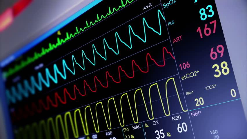 A fictional hospital computer screen monitoring a human heart.