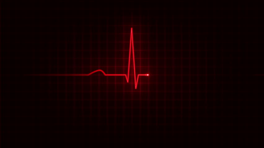 Electrocardiogram. Loopable. 3 in 1. Red. Heartbeat waves showing 3 conditions: tachycardia, healthy heartbeat and loose of heartbeat. More color options in my portfolio.