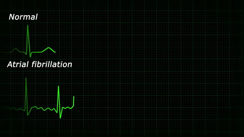 Atrial fibrillation ecg loopable