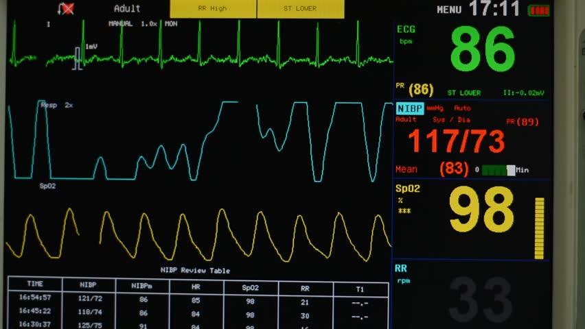 hospital vital signs machine