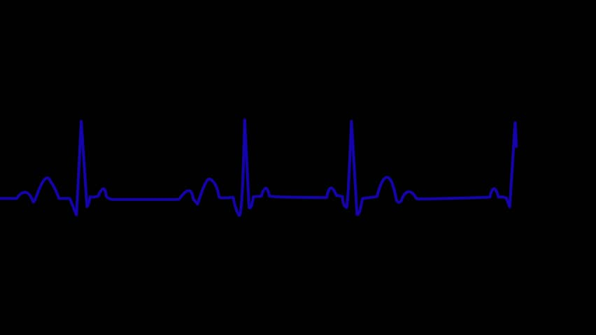 green heart pulse line  animation of ekg heart beat on black background  loopable  alpha channel