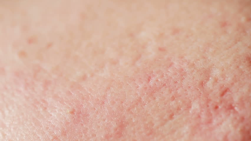 spherical cystic acne on the skin. Close-up. The concept of dermatology