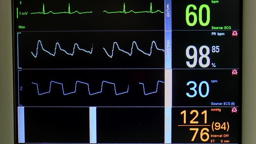 Patient Vital Signs Icu Monitor Closeup – Fondos de Pantalla