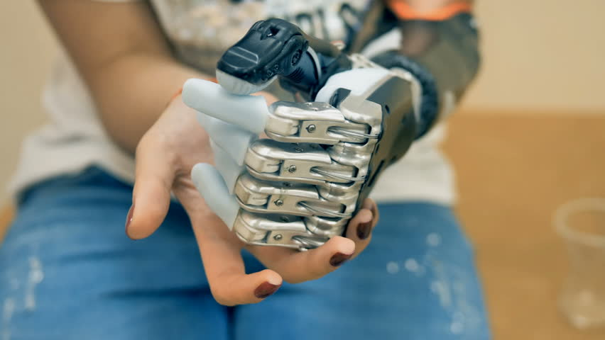prothesis video Artificial limbs, or prosthetics, can allow a person to do activities they might not be able to do otherwise learn more about artificial limbs.
