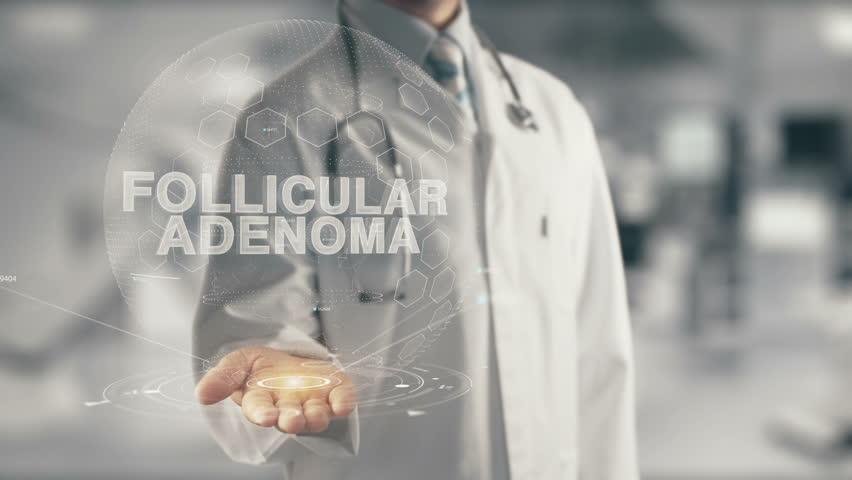 Header of adenoma