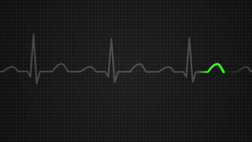 Animation of schematic diagram showing values for a death seen on ECG screen. Orange highlights on dark background