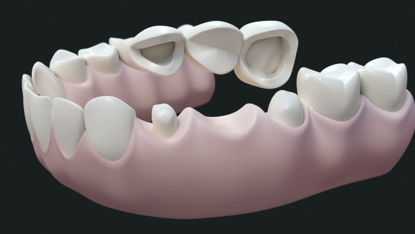 Teeth Cleaning. High Quality Animation 3D Showing The Process Of ...