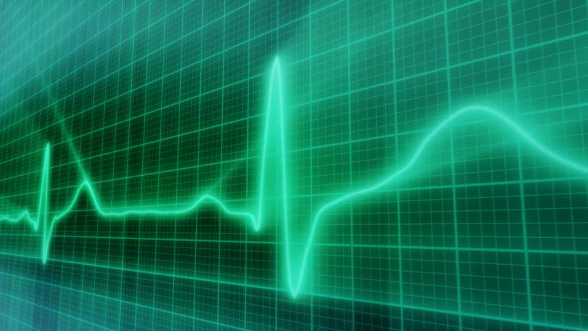 loopable background EKG electrocardiogram pulse real waveform