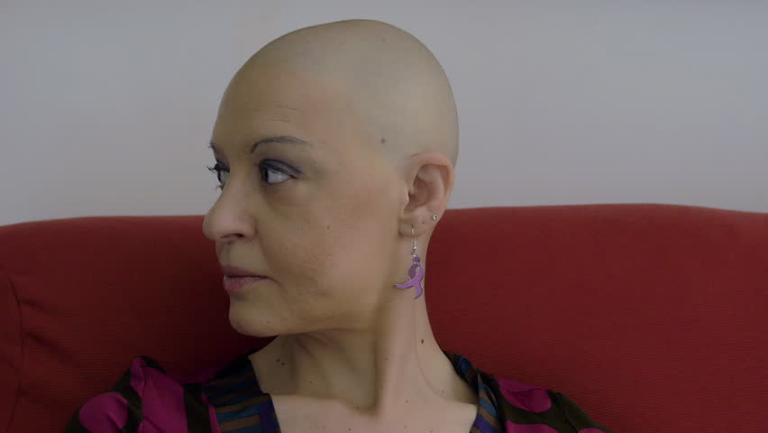 Header of bald