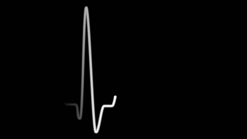 Green heart pulse line. Animation of EKG heart beat on black background, loopable, alpha channel included